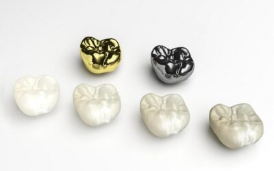 When is a Dental Crown Needed?