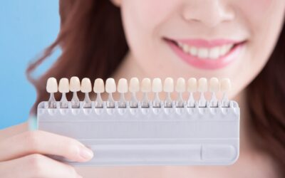 Do You Want a New Smile? Try Veneers