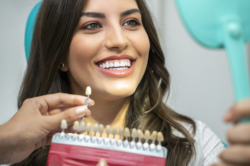 what to expect when veneers are placed